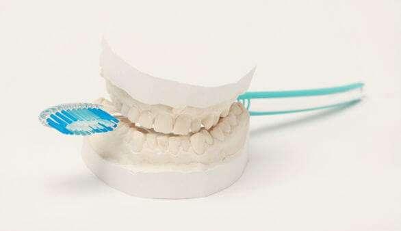 Behandlungsablauf bei Zahnimplantaten