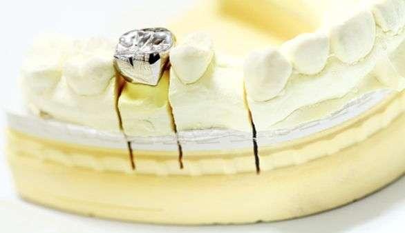 Implantat-Pflege