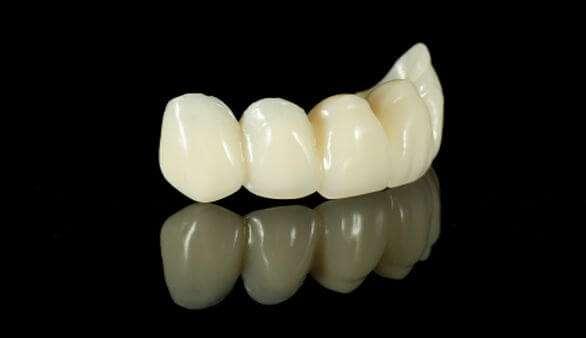 Zahnimplantate aus Keramik