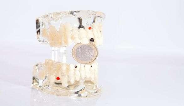 Finanzierung von Zahnersatz