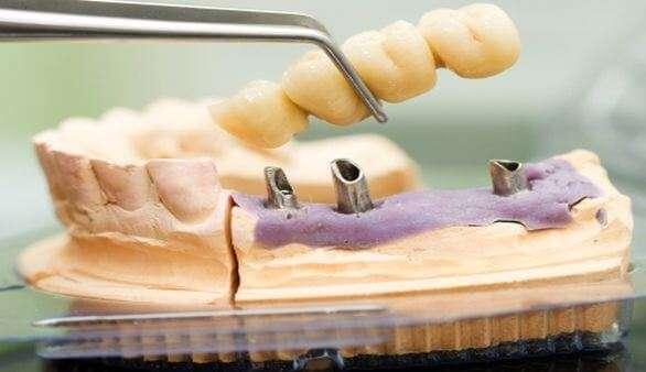 Kosten und Kostenübernahme von Zahnersatz