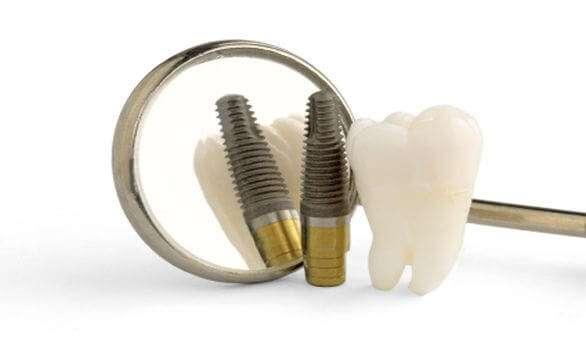 Zahnimplantate aus Titan